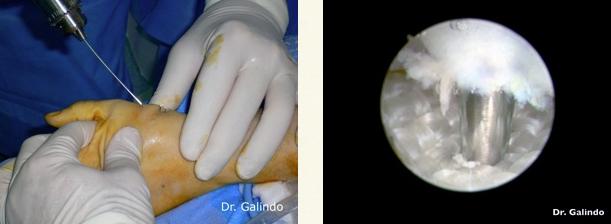 Como curar correctamente el hongo de la uña en la mano por la agua oxigenada
