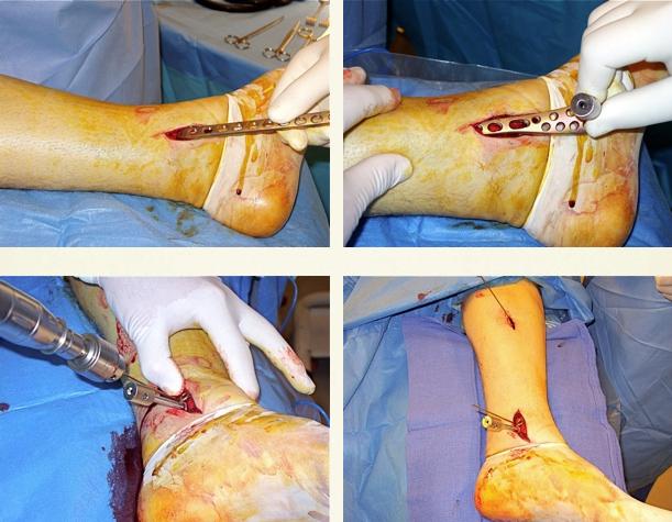 cirugia pilon tibial