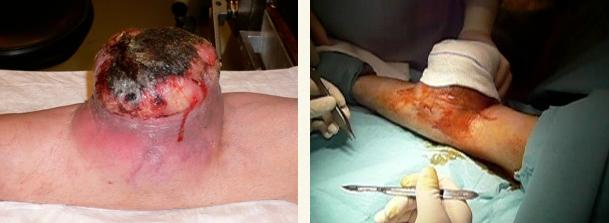 cirugia tumor brazo 01
