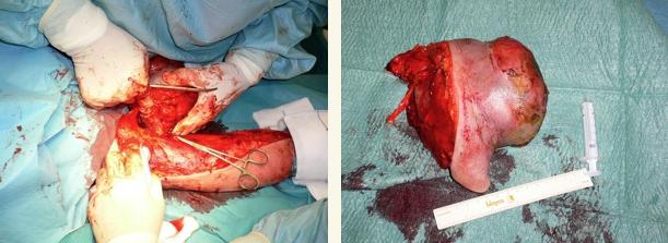 cirugia tumor brazo 03