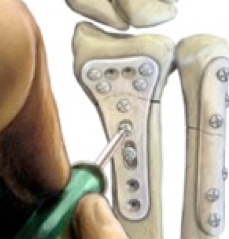 Fractura de Muñeca. Tratamiento de las Fracturas con Implantes Reabsorbibles