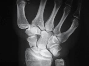 rx fractura escafoides