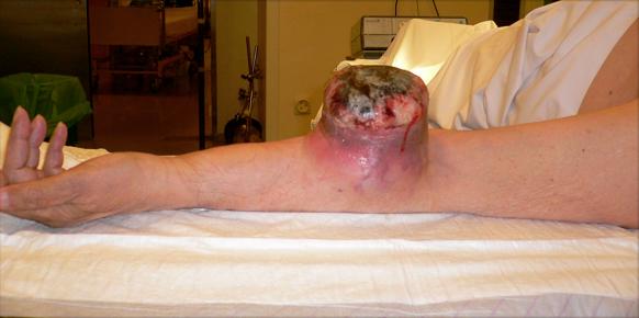 tumor brazo