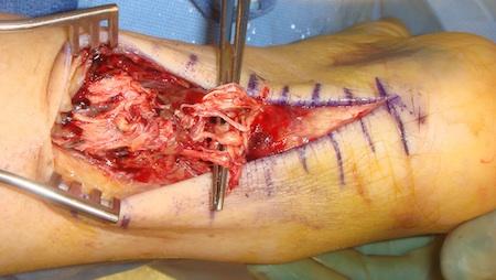 Rotura del tend n de aquiles tratamiento blog del dr for Operacion de pies