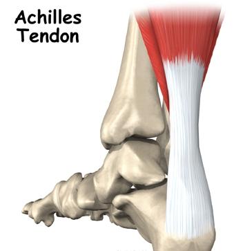 Rotura del Tendón de Aquiles. Tratamiento