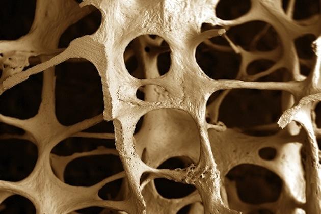 Prevención de la Osteoporosis y las Fracturas Osteoporóticas