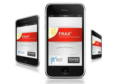 Aplicación iPhone para evaluar el riesgo de fracturas