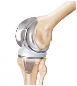 protesis rodilla galindo