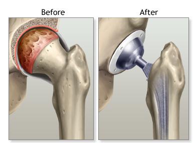 protesis total de cadera